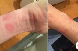 Apple Watch sorgt für Hautausschlag und Apple sieht Schuld bei Kunden